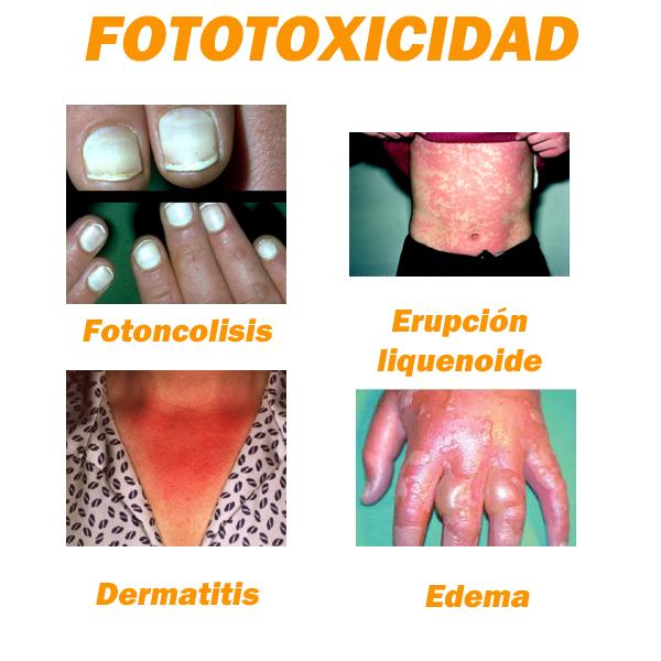 reacciones MEDICAMENTOS FOTOSENSIBILIZANTES